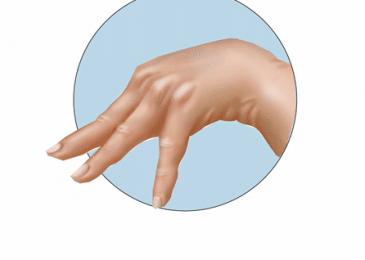 Tetany: Definition, Causes, Symptoms, Diagnosis & Treatment